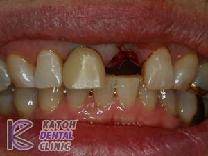 左上の前歯が折れた症例