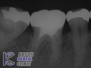 奥歯1本の症例