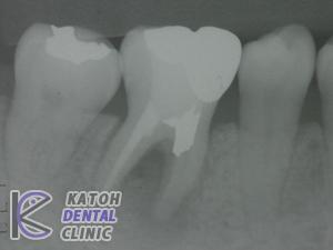 奥歯1本の症例2