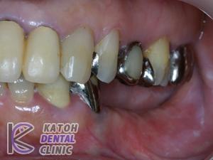 奥歯にインプラントの症例