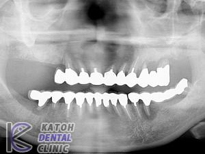 重症の歯周病症例