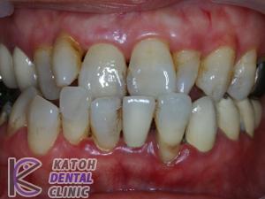 臼歯部崩壊&矯正治療