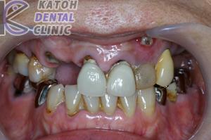 臼歯部インプラント2