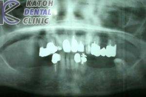 臼歯部インプラント3