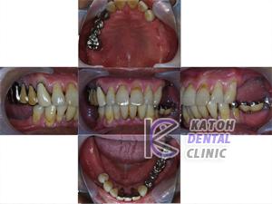 奥歯を作り直した症例2