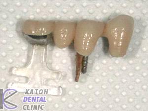 臼歯部が崩壊した症例