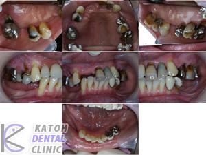 高度の歯周病の症例