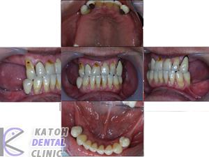 奥歯を作り直した症例