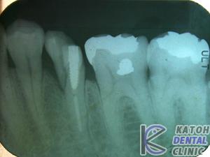 臼歯部インプラント審美修復